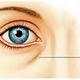比眼袋更显老的是泪沟说起泪沟,很多人不了解,导致很多时候在抗衰问题上也忽略了泪沟问题泪沟通常是伴...
