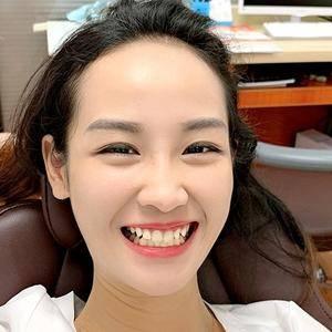 安徽韩美整形超声波洗牙