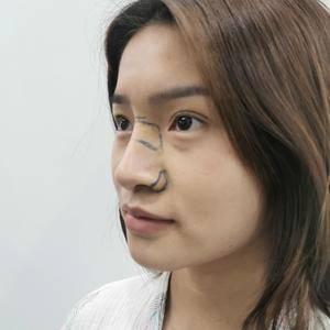 鼻修复+眼修复