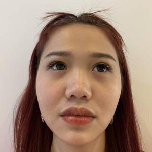 假体鼻综合
