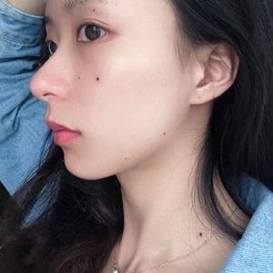 安徽韩美整形激光点痣