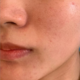 连续做完两次光子之后我已经决定护肤做起来了,这次分享的是第二次效果,治疗前洁面后,由于出油有些小粉刺...