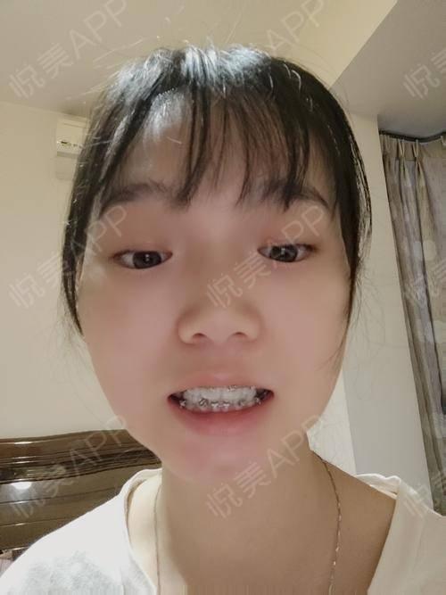 金属托槽矫正术后60天_牙齿矫正术后60天_牙齿美容术后60天_悦Mer_319310分享图片1