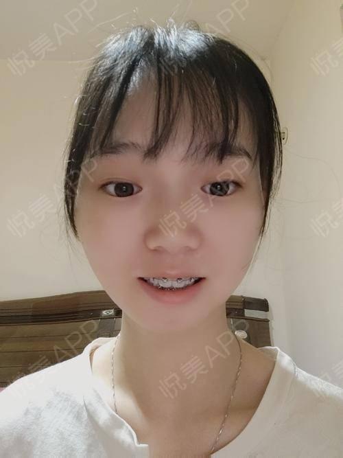 金属托槽矫正术后60天_牙齿矫正术后60天_牙齿美容术后60天_悦Mer_319310分享图片6