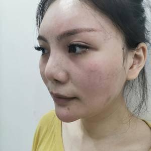 半肋鼻修复