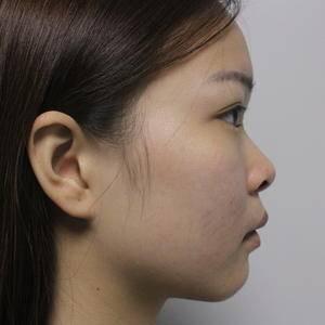 连美-鼻综合