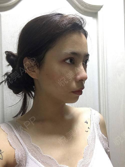 像素激光手术当天_CO2点阵激光手术当天_去疤痕痘印手术当天_皮肤美容手术当天_文婧柠分享图片2