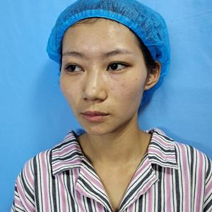 磨下颌角手术
