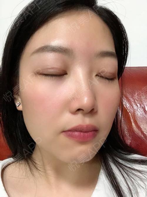 全切双眼皮术后25天_双眼皮术后25天_眼部整形术后25天_小熊饼干分享图片5