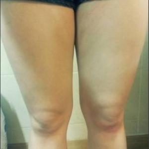 吸脂大腿瘦