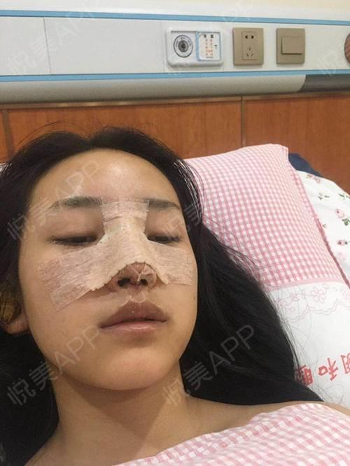 自体耳软骨隆鼻术后3天_隆鼻术后3天_鼻部整形术后3天_悦Mer_031356分享图片3