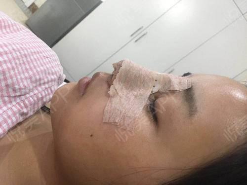自体耳软骨隆鼻术后3天_隆鼻术后3天_鼻部整形术后3天_悦Mer_031356分享图片4