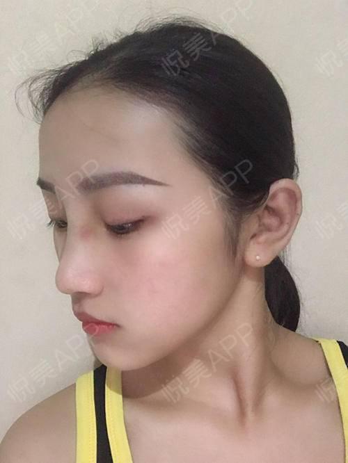 自体耳软骨隆鼻术后7天_隆鼻术后7天_鼻部整形术后7天_悦Mer_031356分享图片2