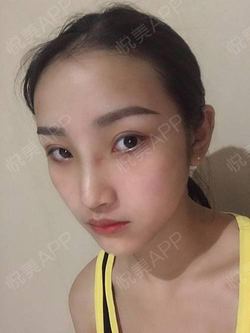 自体耳软骨隆鼻术后7天_隆鼻术后7天_鼻部整形术后7天_悦Mer_031356分享图片3