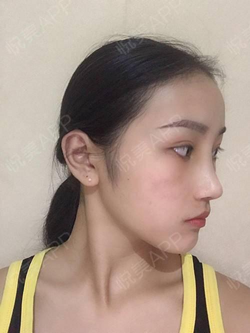 自体耳软骨隆鼻术后7天_隆鼻术后7天_鼻部整形术后7天_悦Mer_031356分享图片4