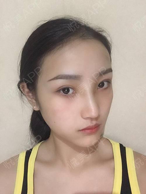 自体耳软骨隆鼻术后7天_隆鼻术后7天_鼻部整形术后7天_悦Mer_031356分享图片6