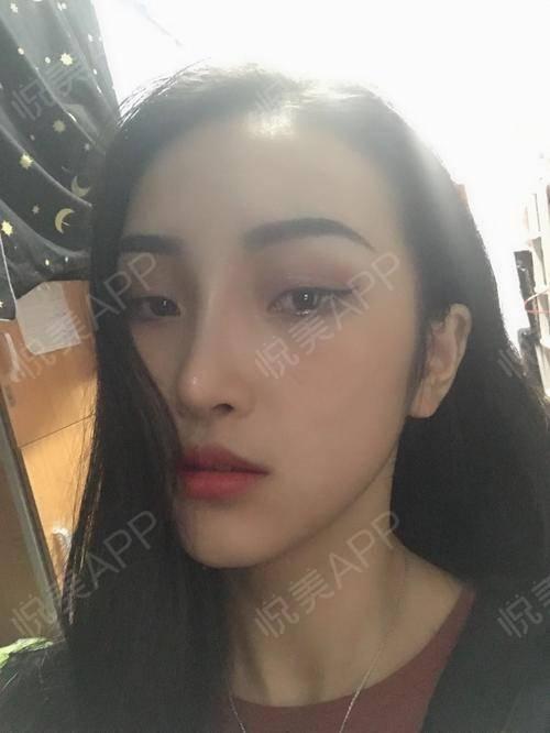 自体耳软骨隆鼻术后83天_隆鼻术后83天_鼻部整形术后83天_悦Mer_031356分享图片6