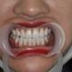 今天要和大家讲讲我做的牙齿贴面!一开始只是准备去洗个牙的我,万万没想到我就被安利了牙贴面,谁让我一开...