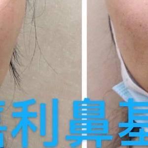 填充完鼻基底有没有异物感?