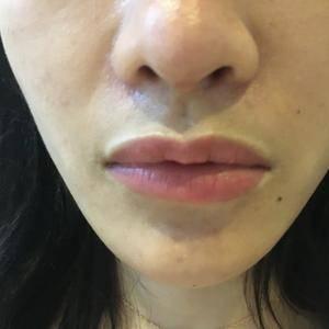 唇综合手术