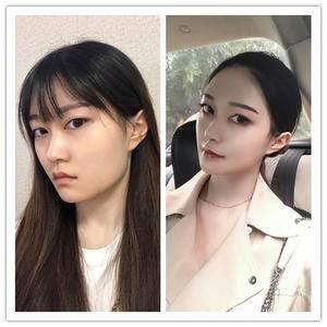 下颌角整形术换脸的那种
