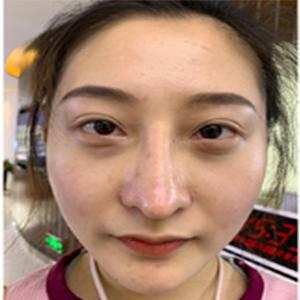 鼻部矫正+鼻综合整形