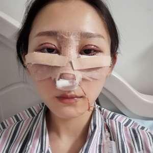 悦Mer_9265486923耳软骨鼻综合手术当天第1页图