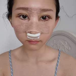 悦Mer_9265486923耳软骨鼻综合术后5天第3页图