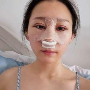 悦Mer_9265486923耳软骨鼻综合术后5天第2页图