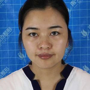 膨体隆鼻手术