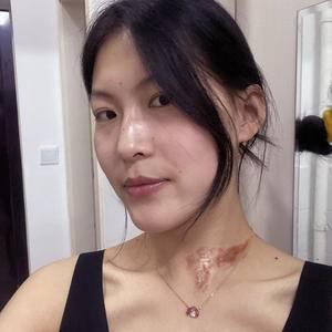 烧烫伤疤痕