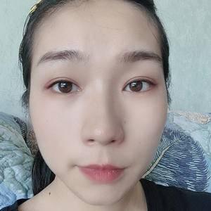 眼综合整形双眼皮