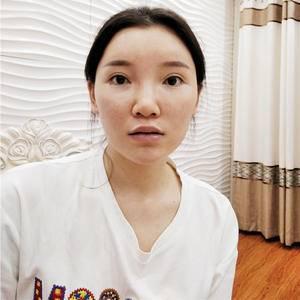 隆鼻术后记录