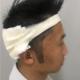 """身边有兄弟做了发际线植发,整个人都变了很多,而且看他后面的头发也长的挺不错的,并没有""""拆东墙补西墙""""..."""