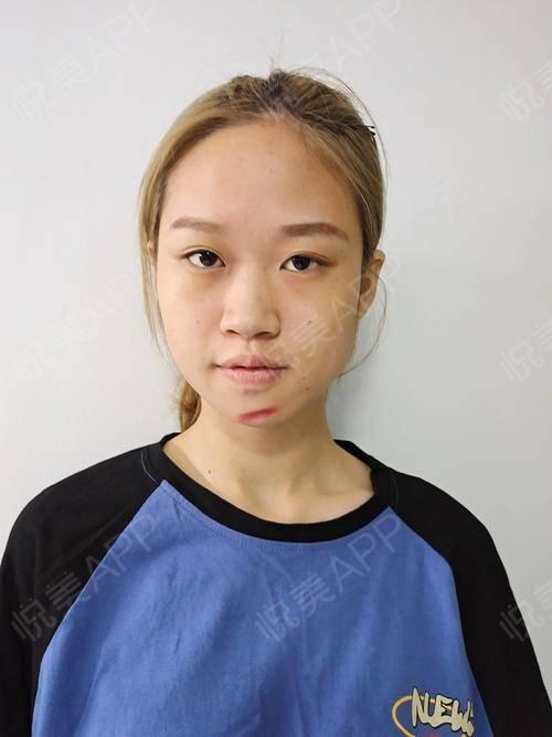 像素激光术后3天_激光祛疤术后3天_去疤痕痘印术后3天_皮肤美容术后3天_烯娜旖分享图片2