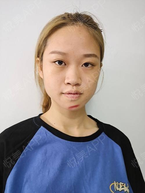 像素激光术后3天_激光祛疤术后3天_去疤痕痘印术后3天_皮肤美容术后3天_烯娜旖分享图片3