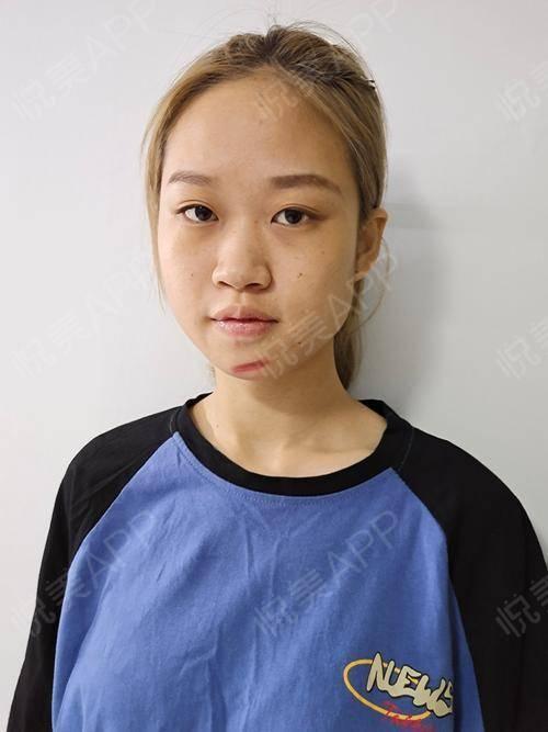像素激光术后3天_激光祛疤术后3天_去疤痕痘印术后3天_皮肤美容术后3天_烯娜旖分享图片4
