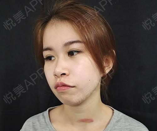 像素激光术后3天_激光祛疤术后3天_去疤痕痘印术后3天_皮肤美容术后3天_钰儿rxk分享图片2