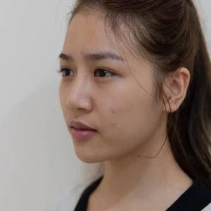 [鼻部修复]鼻修复—美莱整形美容医院