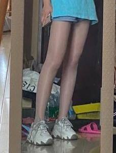 大腿吸脂修复任