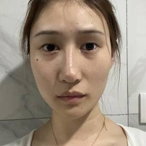 天津健丽不开刀双眼皮