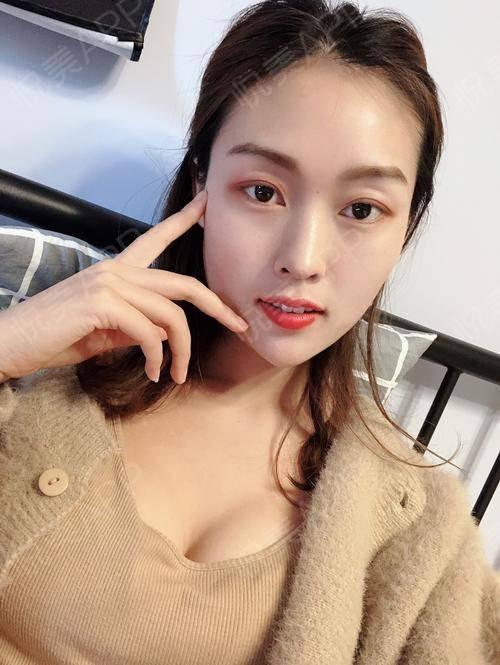 【南京美贝尔-自体脂肪隆胸】♡现在越来越多的人注重的不仅仅是面部的优化,还有就是胸部的形状大小,现在隆胸技术的发展也是满...
