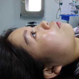 悦Mer_1085204433耳软骨鼻综合手术当天第3页图