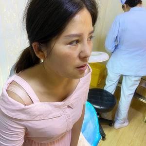 悦Mer_1085204433耳软骨鼻综合术后7天第3页图