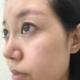 脸上的斑基本上不见了,以前用激光得3次左右才能看到效果,而这次仅仅做一次皮秒就有这样的效果,而且嫩肤...