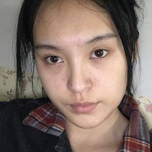 鼻综合案例