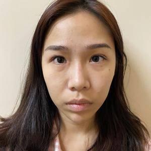 鼻综合、全鼻整形