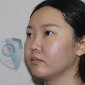 小琳隆鼻记录分享