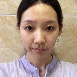 面部填充+双眼皮修复5