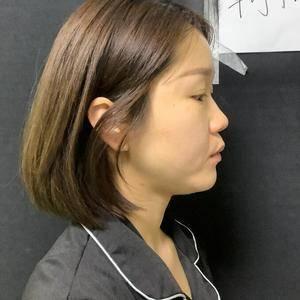单侧耳软骨隆鼻